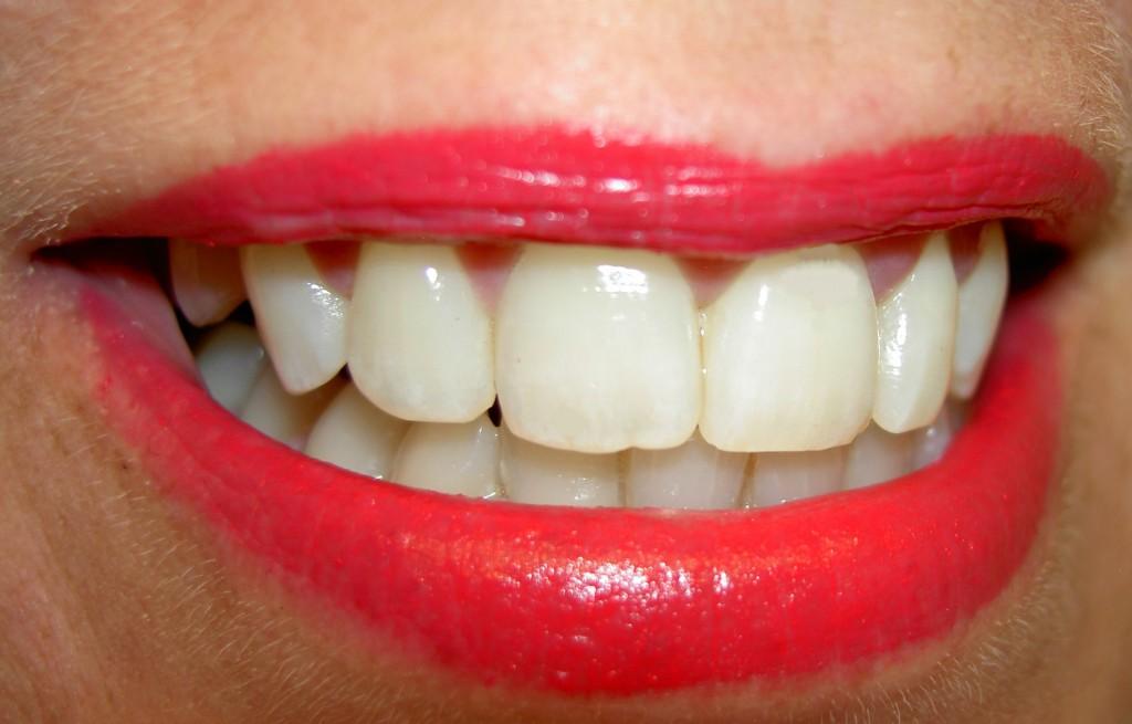 Polacy-drukuja-podbudowy-pod-korony-dentystyczne